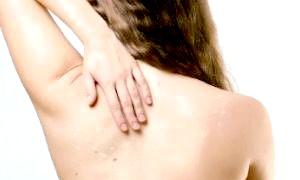 Білі плями на шкірі після засмаги - як визначити природу їх виникнення