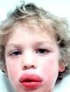 Анафілактичний шок у дітей - рідкісний вид алергії