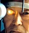 Закритокутова глаукома - можливо важкий перебіг захворювання