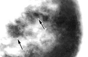 Фото - Рентген молочної залози при дифузній формі
