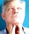 Дифузний зоб щитовидної залози як найбільш поширений патологічний стан