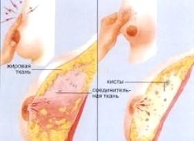 Фото - Дифузне фіброзно-кістозне захворювання