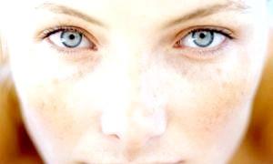 Якщо з'явилися пігментні плями на обличчі - шукайте причину