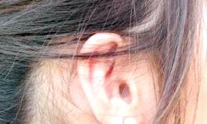 Якщо у вас заклало вухо, що робити? справлятися з ситуацією!