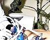 Пресотерапія - один з методів лімфодренажа
