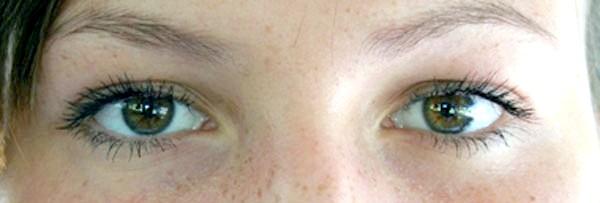 Фото - Що робити якщо смикається очей: до якого лікаря звертатися