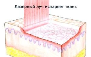Фото - Лазерна абляція грудей