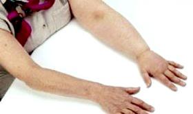 Як боротися з лимфостазом, що виникають при мастектомії?
