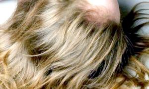 Як швидко відростити волосся: натуральні народні засоби
