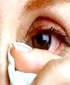 Як лікувати ячмінь на оці - не все так просто