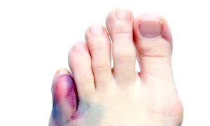 Фото - Як лікувати забій пальця на нозі: докладний посібник та рекомендації