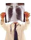 Пульмонологія - все, що ви хотіли знати про захворювання органів дихання