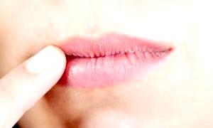 Як запобігти появі тріщин на губах і чому це відбувається?