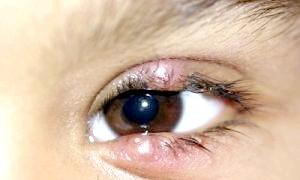 Як вилікувати ячмінь на оці у дітей швидко і безболісно