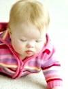 Як піклуватися про немовлят із синдромом дауна?