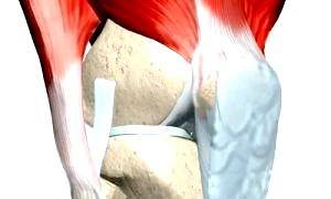 Який ефективний спосіб усунення дефектів кістки використовується в сучасній медицині?