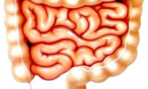 Кандидоз кишечника: що це і як з цим боротися
