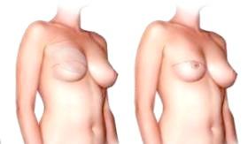 Фото - Відновлення грудей після видалення