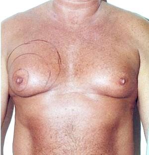 Фото - Збільшення грудей у чоловіків