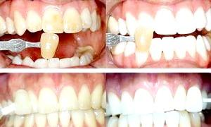 Методи відбілювання зубів: народні та клінічні способи