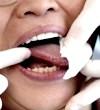 Фото - молочниця у роті