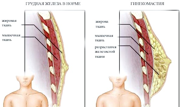 Фото - Порівняння нормального стану грудних залоз з аномальним