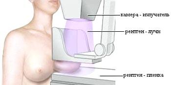 Фото - Огляд перевірки у мамолога
