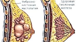 Фото - Lbfuyjp aіброзно-кістозне захворювання грудей