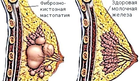 Небезпека мастопатії для жіночого організму