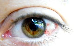 Чому лопаються судини в очах, що робити і чи можна допомогти собі самостійно?