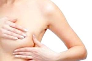 Детально про 3-й стадії раку молочної залози