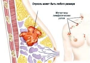 Принципи лікування онкологічного захворювання грудей