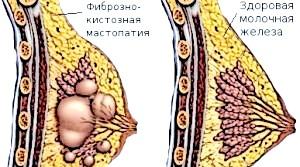 Ознаки мастопатії в різному віці і при клімаксі