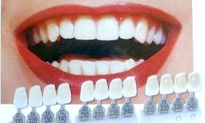 Протезування зубів: види та особливості