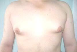 Фото - Запалення молочних залоз у підлітків
