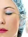 Рітідектомія: видалення зморшок