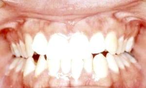 Скільки у людей зубів?