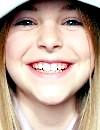 Фото - молочні зуби
