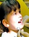 Фото - зуби дітей