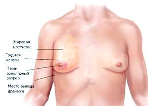 Варіанти лікування гінекомастії