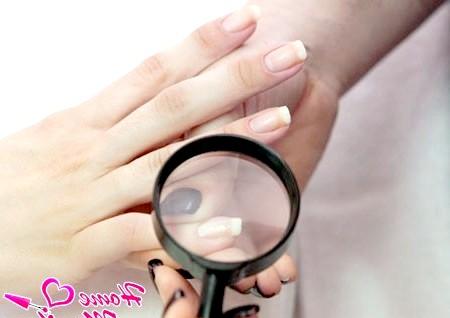 Фото - етап діагностики нігтів