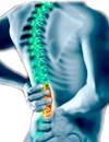 Защемлення нерва в спині - геть високі навантаження