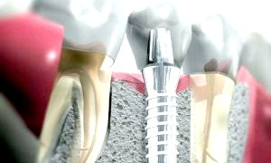 Фото - Зубні імпланти. Добре це чи погано?