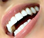 Зуби мудрості: що це, прорізування, видалення, проблеми, які викликають зуби мудрості
