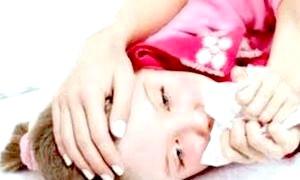 Чим підступний коклюш: симптоми у дітей