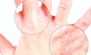 Що робити, якщо з'явилася екзема на руках, як лікувати її