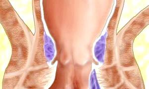 Що таке геморой і як його лікувати?