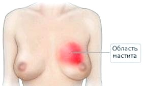 Фото - Інфільтрат молочної залози