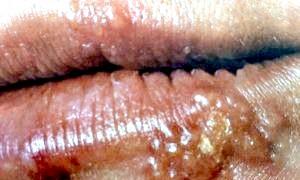 Фото - Що це таке вірус герпесу?