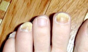 Що таке грибок на ногах?